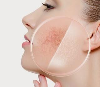 Zabieg wzmacniająco-łagodzący dla skór naczyniowych