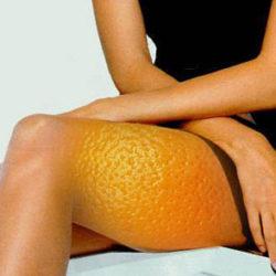 Karboksyterapia na cellulit